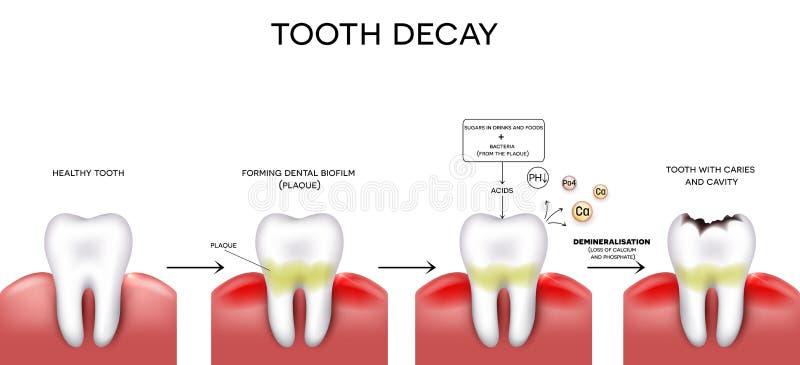 Carie y cavidad del diente ilustración del vector. Ilustración de ...