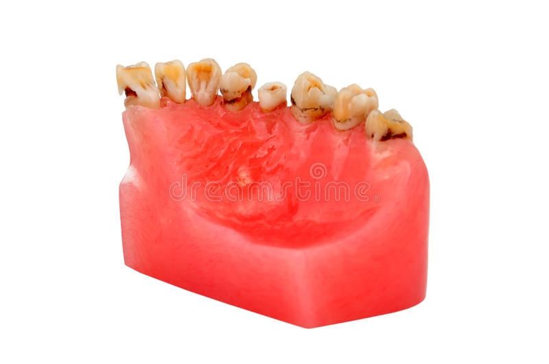 Caries stock image