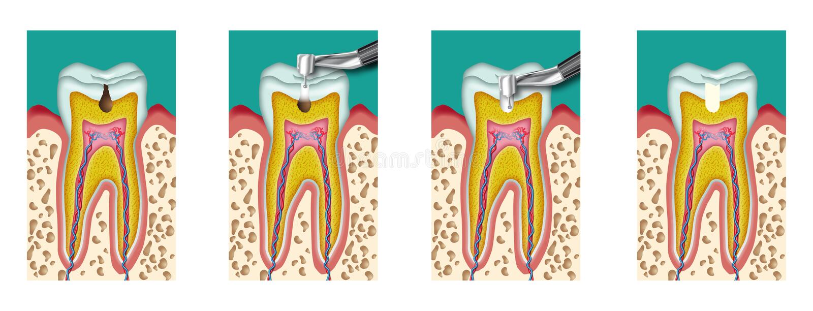 Caries stock illustration