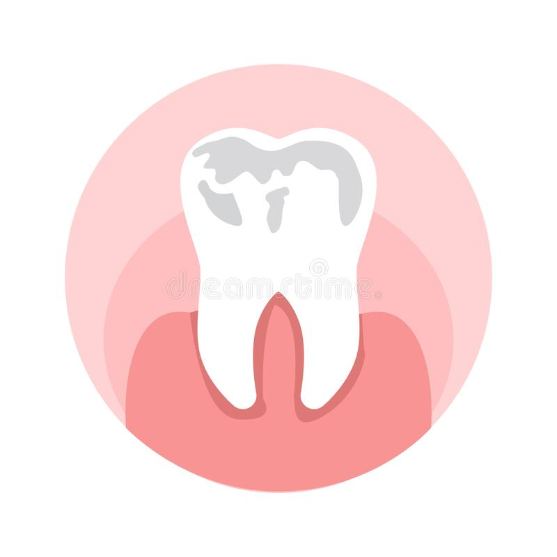 Caries, Holes in Tooth Flat Vector Illustration. Dental Sickness Symbol, Stomatology Clinic. Damaged Enamel, Toothache, Cavities Treatment, Dentistry Service stock illustration