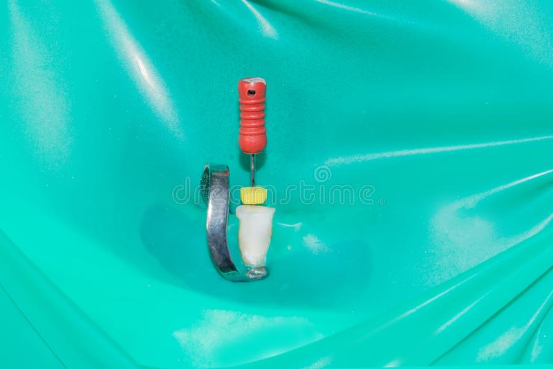 Caries spoiled tooth closeup photographed. Through dental mirror royalty free stock images