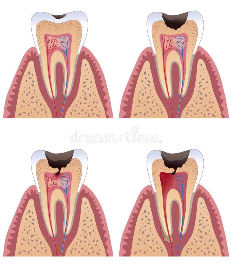 Free Caries Stages Stock Image - 19737411