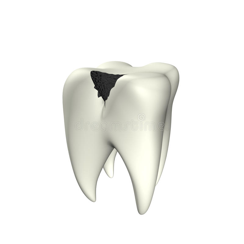 Caries Tooth 3D vector illustration