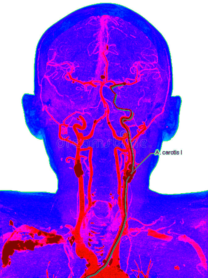 Carotid artery disease. Color computed tomography angiography image in a patient with carotid artery disease stock photography