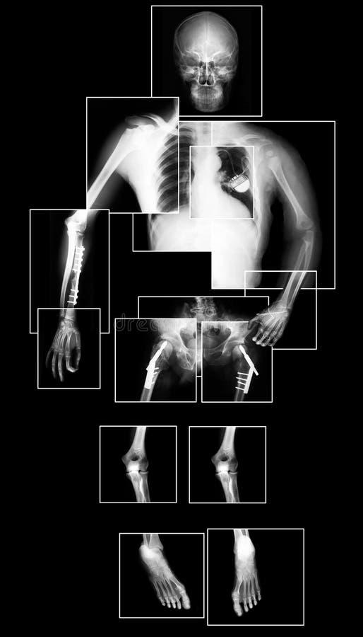 Carrocería de la radiografía ilustración del vector
