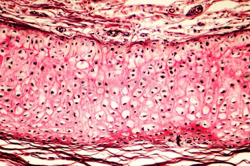 Cartílago elástico del oído externo humano fotografía de archivo