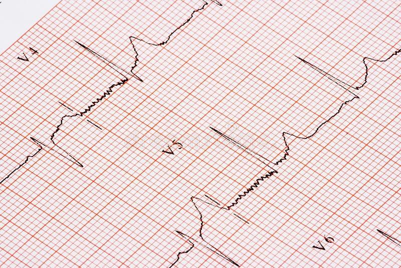 Carta de EKG fotos de stock