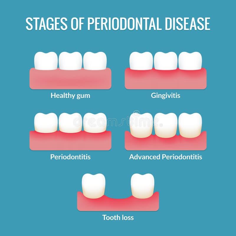 Carta de la enfermedad periodontal ilustración del vector