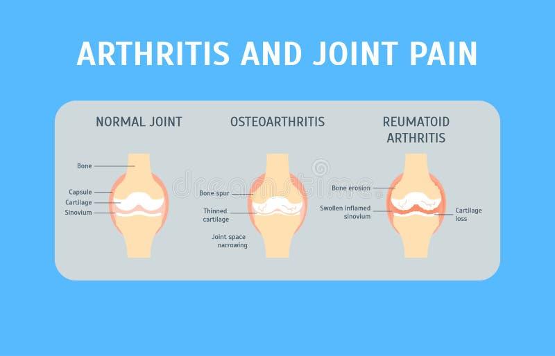 Carta di concetto di artrite e di dolori articolari del fumetto Vettore illustrazione vettoriale
