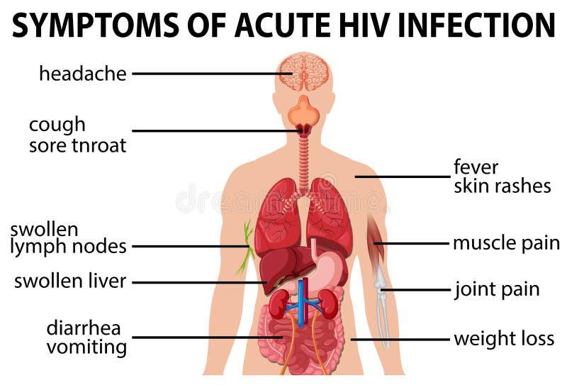 Carta dos symtoms da infecção pelo HIV aguda ilustração royalty free
