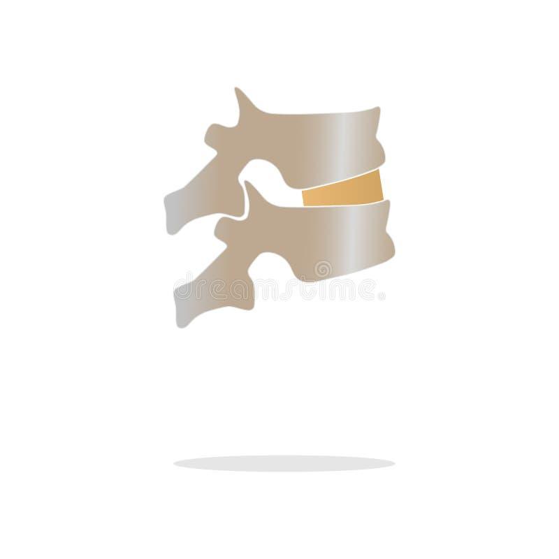 A carta médica Ankylosing do vetor realístico de Spondylitis com a coluna vertebral humana articula a inflamação e a fusão dos os ilustração do vetor