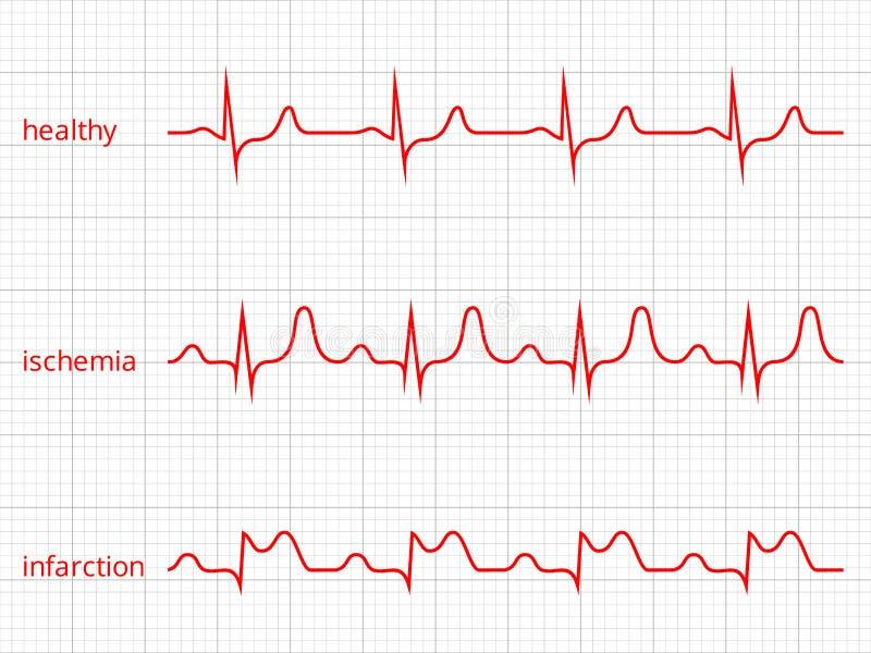 Cartas del vector del cardiograma del corazón fijadas Corazón sano stock de ilustración