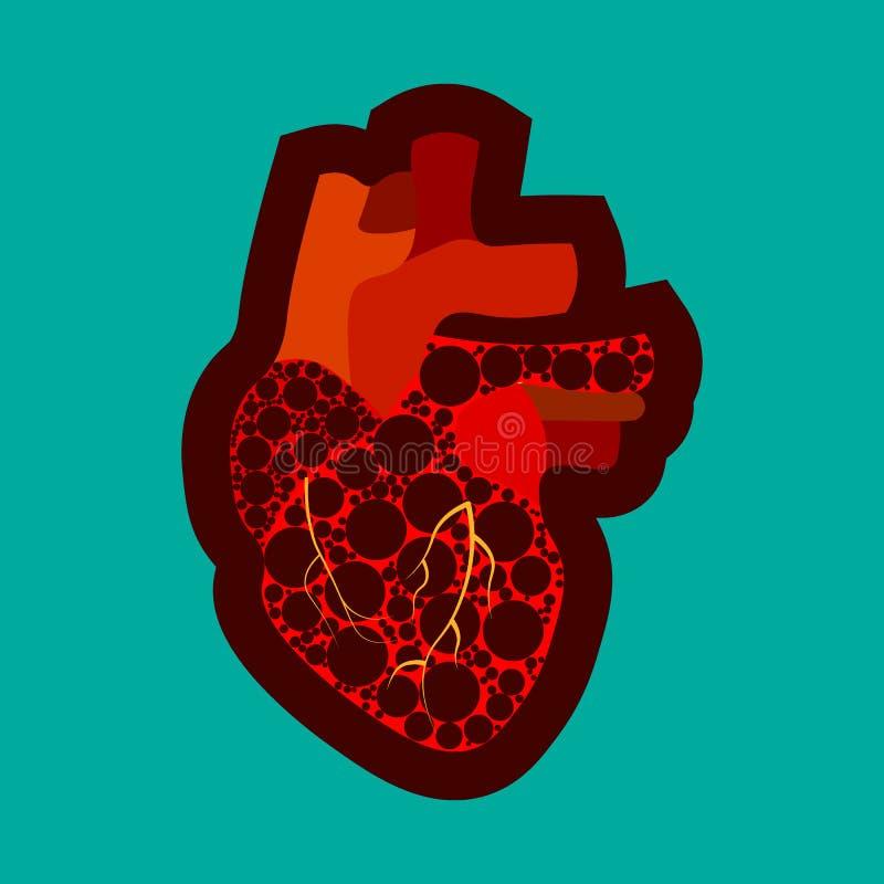 Cartaz congenital da conscientização da doença cardíaca com personagem de banda desenhada triste no fundo azul Ícone da anatomia  ilustração stock