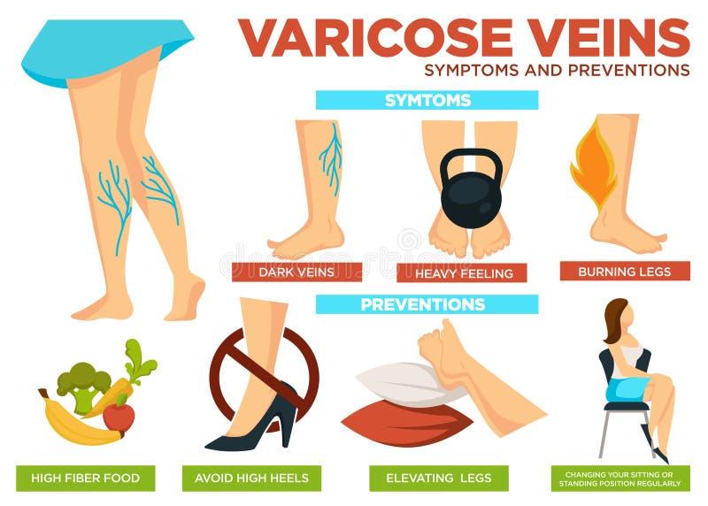 Cartaz dos sintomas e das prevenções das veias varicosas com vetor de informação ilustração stock