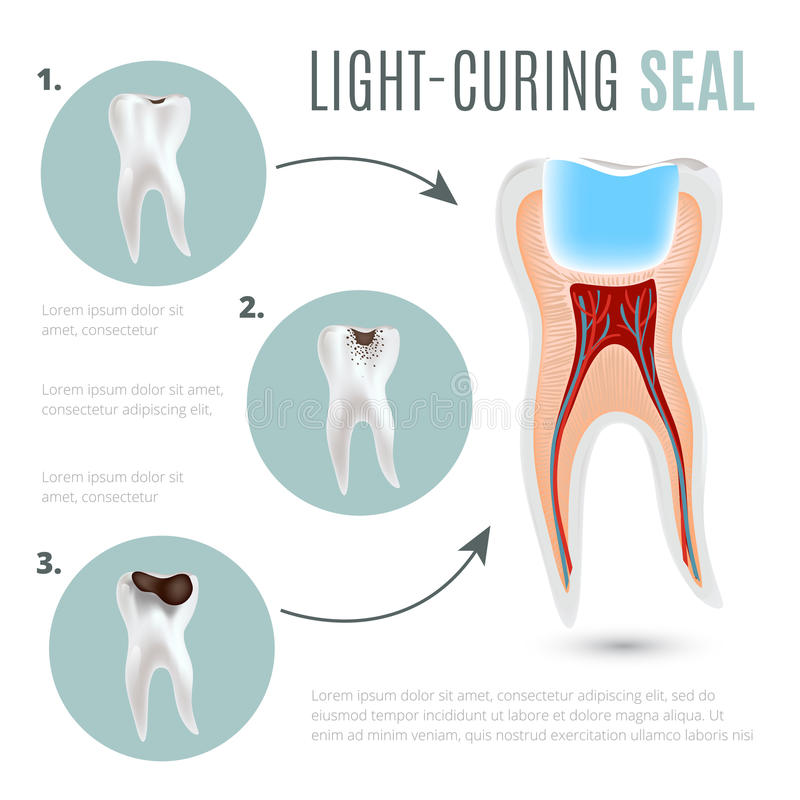 Cartaz médico realístico com fases da deterioração de dente e do selo da luz-cura ilustração do vetor