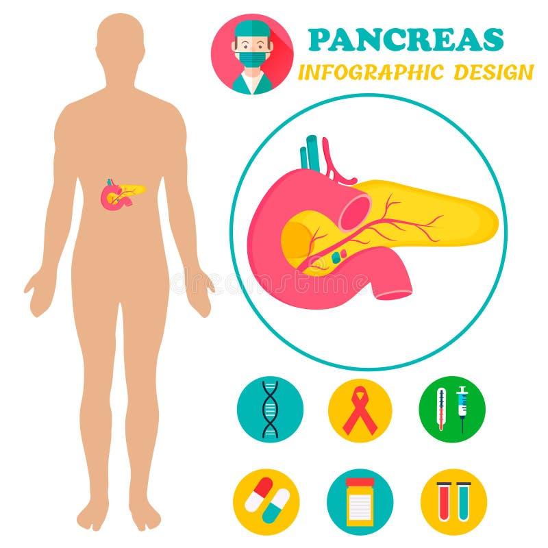 Cartel De Infographic Con Imagen Del Páncreas Y El Cuerpo Humano ...