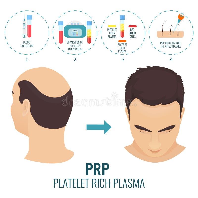 Cartel del tratamiento de PRP ilustración del vector