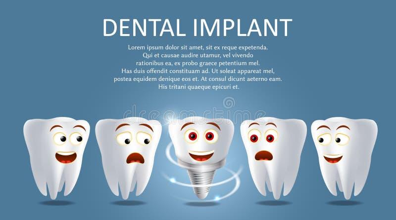 Cartel del vector del implante dental o plantilla de la bandera ilustración del vector