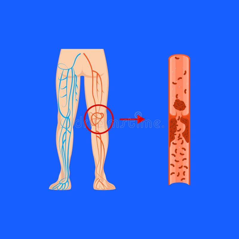 Cartoon Deep Vein Thrombosis Card Poster. Vector. Cartoon Deep Vein Leg Thrombosis on a Blue Treatment Concept Flat Design Style. Vector illustration of Varicose stock illustration