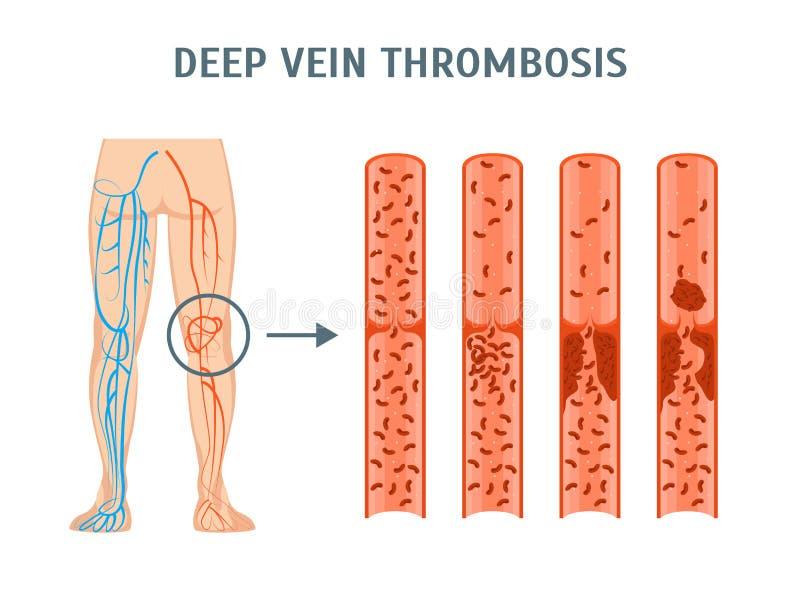 Cartoon Deep Vein Thrombosis Infographics Card Poster. Vector. Cartoon Deep Vein Leg Thrombosis Infographics Card Poster Treatment Concept Flat Design Style stock illustration