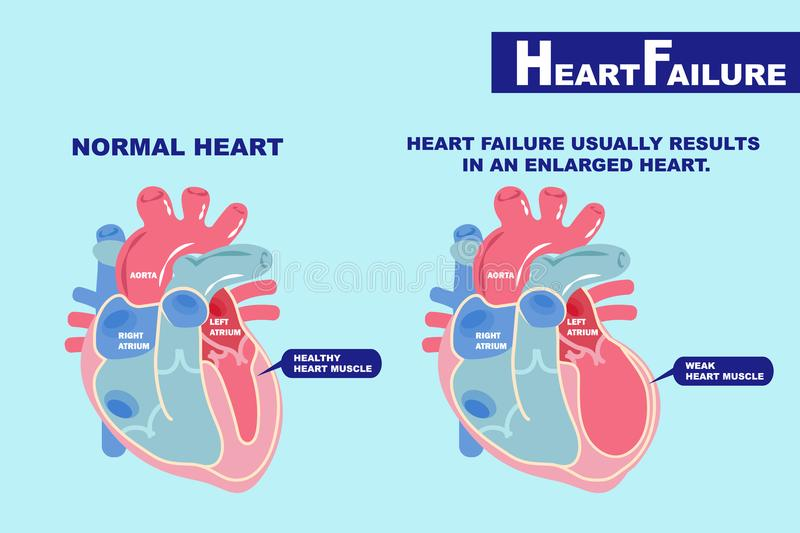 Heart failure concept vector illustration