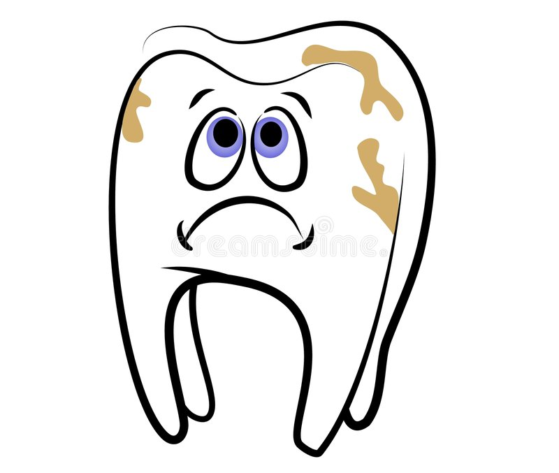 Cartoon Tooth Dental Cavity. A clip art illustration of a cartoonish looking white tooth with a sad face because he's full of cavities against an isolated white royalty free illustration