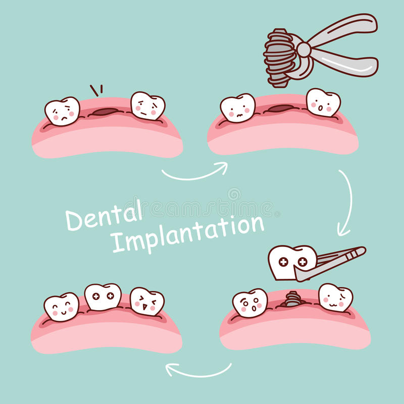 Cartoon tooth dental implantation concept. Cute cartoon tooth implant treatment, great for health dental care concept stock illustration