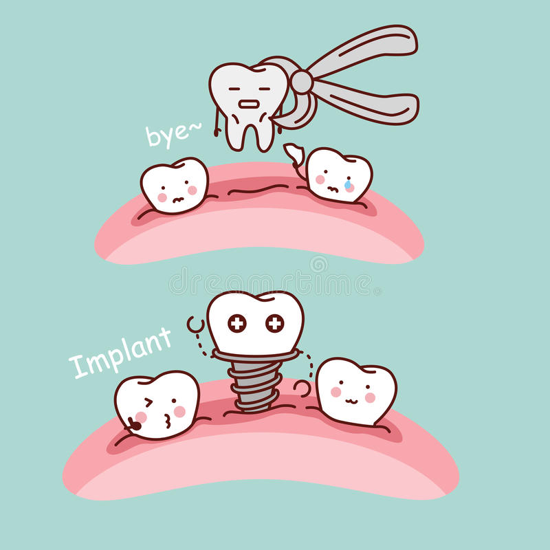 Cartoon tooth extract and implant. Cute cartoon tooth extract and implant, great for health dental care concept stock illustration