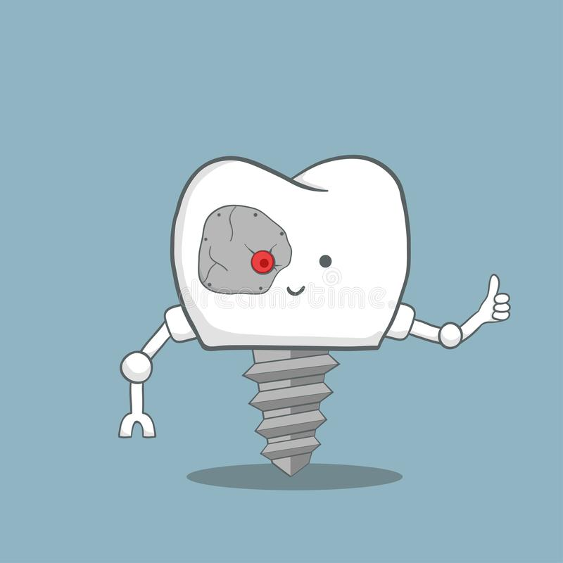 Cartoon tooth implant robot stock illustration