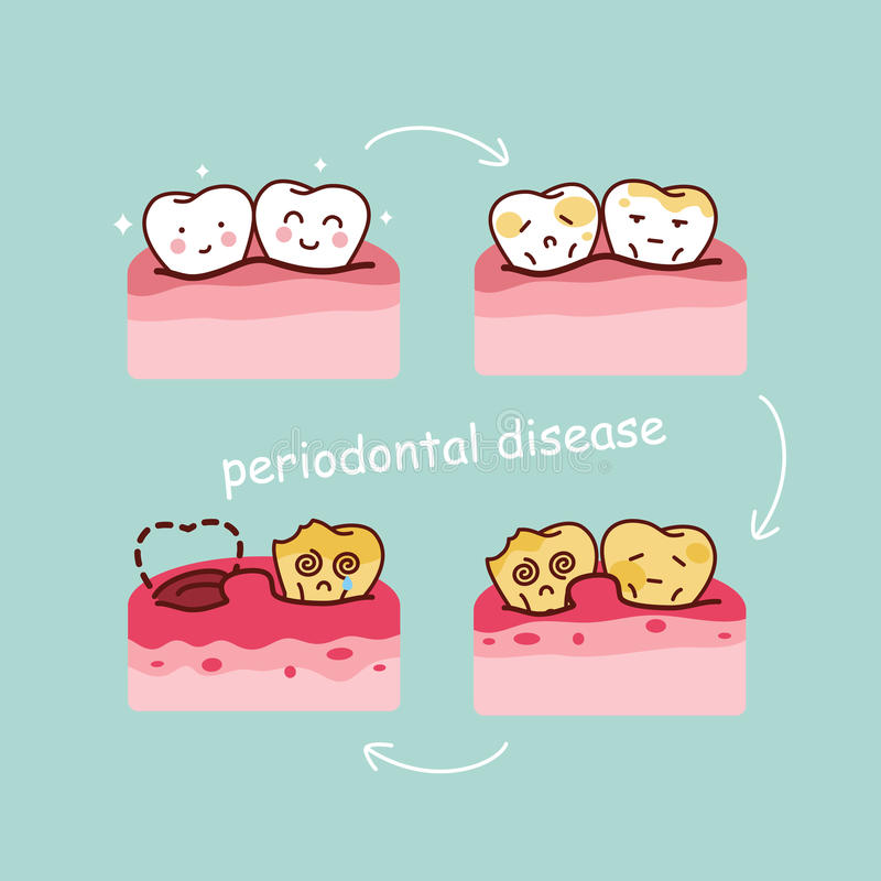 Cartoon tooth periodontal disease royalty free illustration