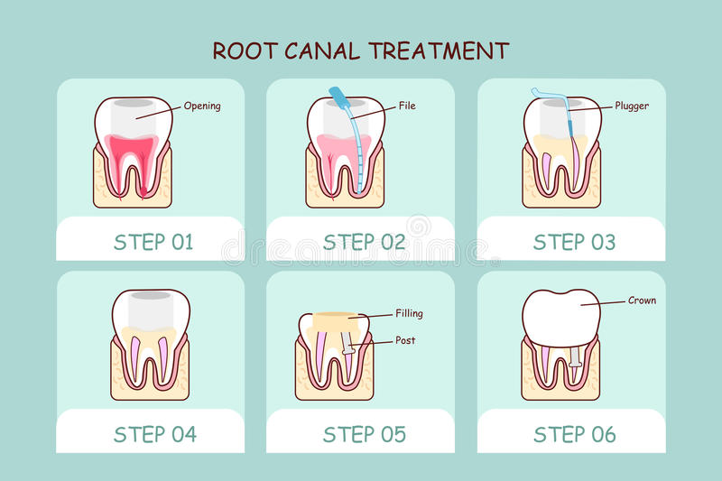 Cartoon tooth root canal treatment. Great for dental care concept vector illustration