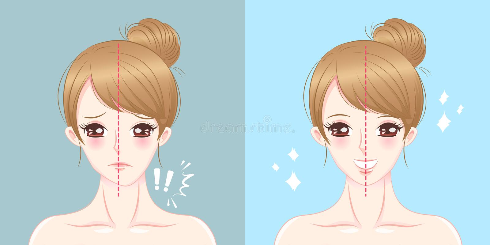 Cartoon woman asymmetry chin. Surgery woman asymmetry chin before and after on the blue background stock illustration