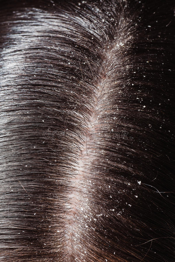 Caspa en su pelo oscuro imagen de archivo libre de regalías