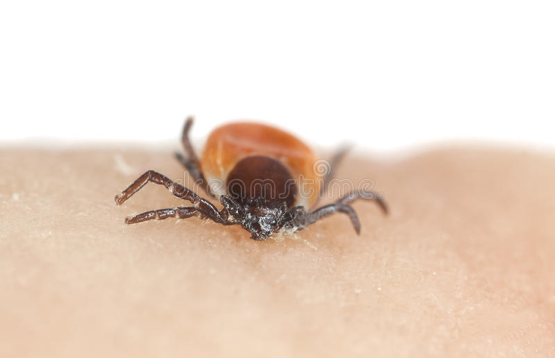 Castor bean tick, Ixodes ricinus on human skin. Macro photo of a castor bean tick, Ixodes ricinus on human skin. This animal can be a carrier of diseases like stock image