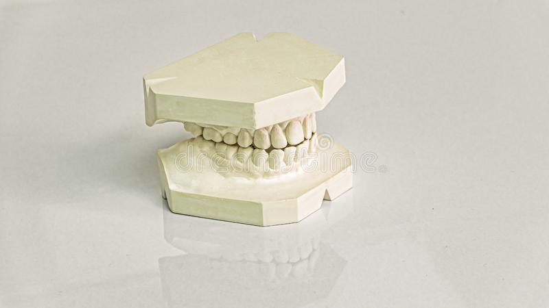 Casts of dentures, Modern dental, stomatology clinic stock images