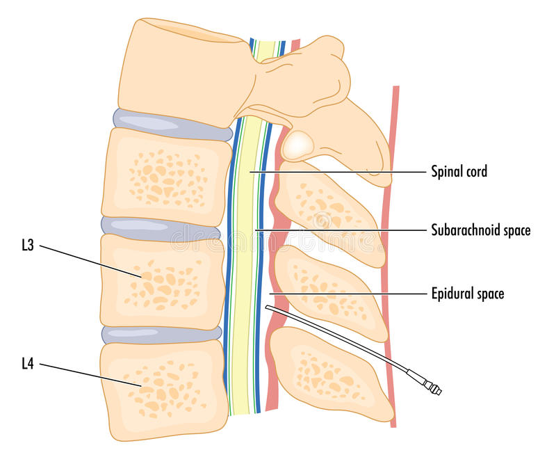 Catéter en espacio epidural libre illustration