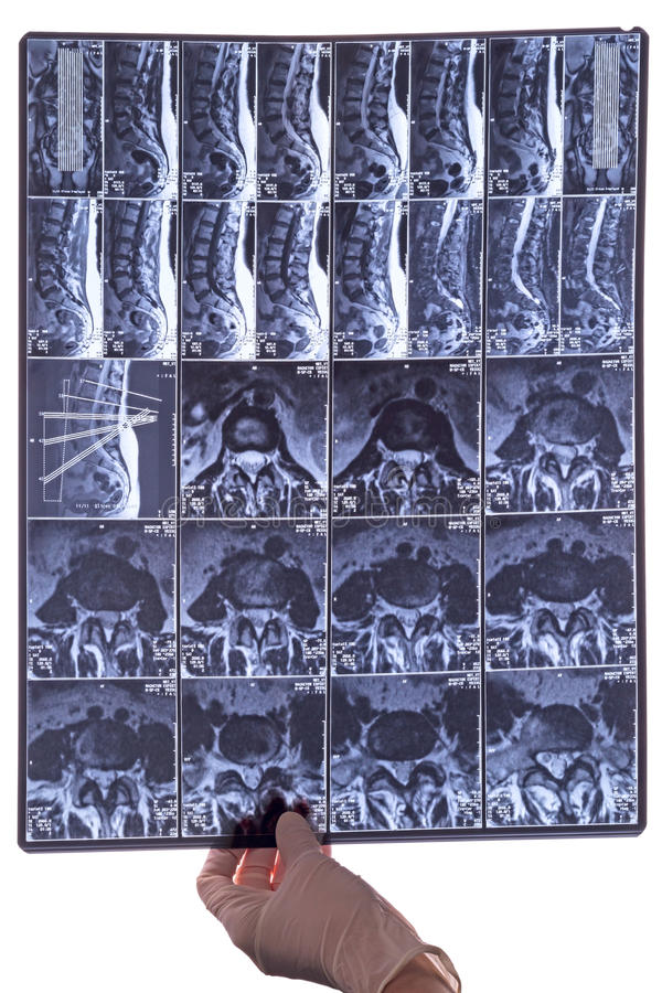 CAT scan in his hand the doctor. CAT scan (Anonymous) in his hand the doctor. Magnetic resonance imaging (MRI royalty free stock photos