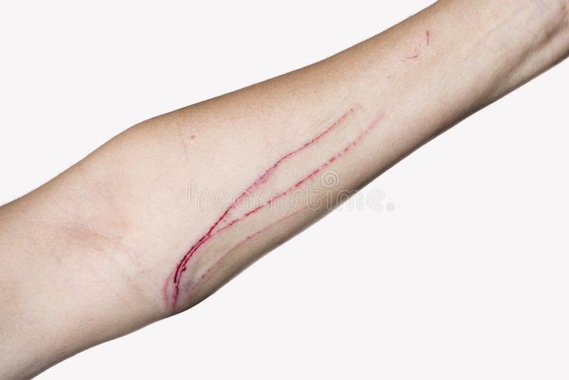 Cat Scratch Stock Image. Image Of Skin, Disgusting