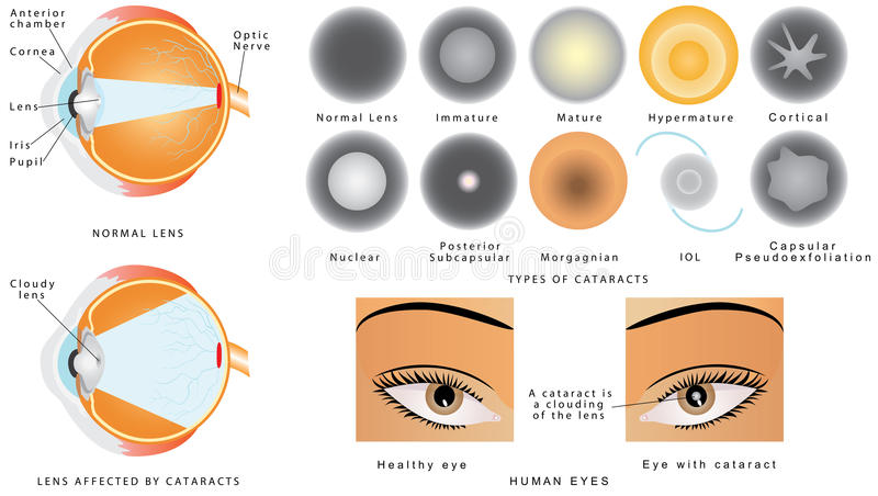 Cataract royalty free illustration