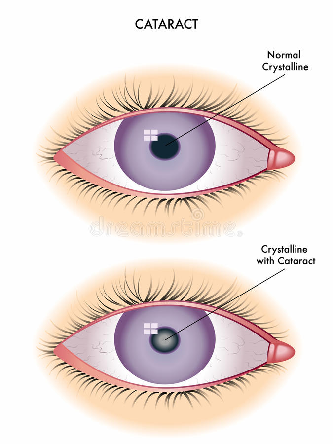 Cataract. Medical illustration of the effects of cataract royalty free illustration