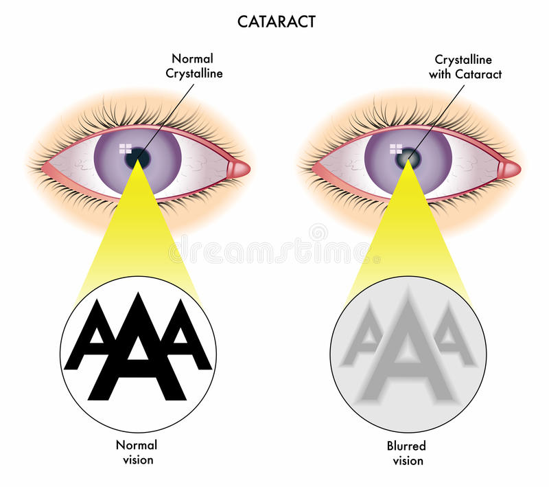 Cataract. Medical illustration of the effects of cataract