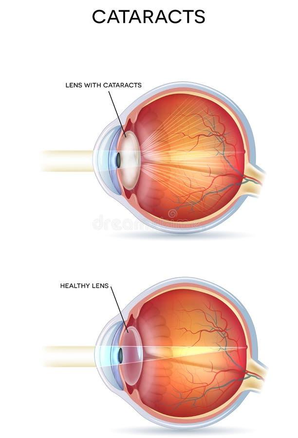 Cataracts vector illustration