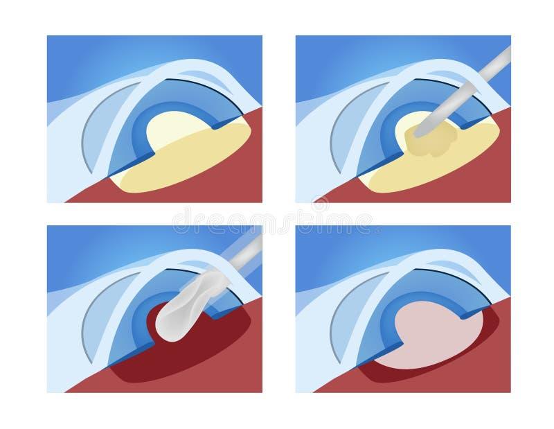 Cataracts surgery / eye vector illustration