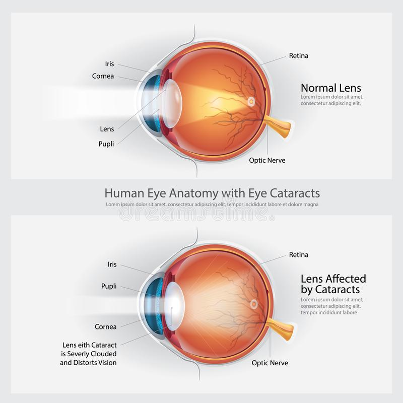 Cataracts Vision Disorder and Normal Eye Vision Anatomy stock illustration