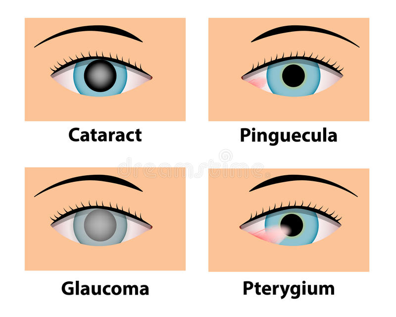 Catarata, Pinguecula, glaucoma e pterígio, cuidado do olho ilustração royalty free