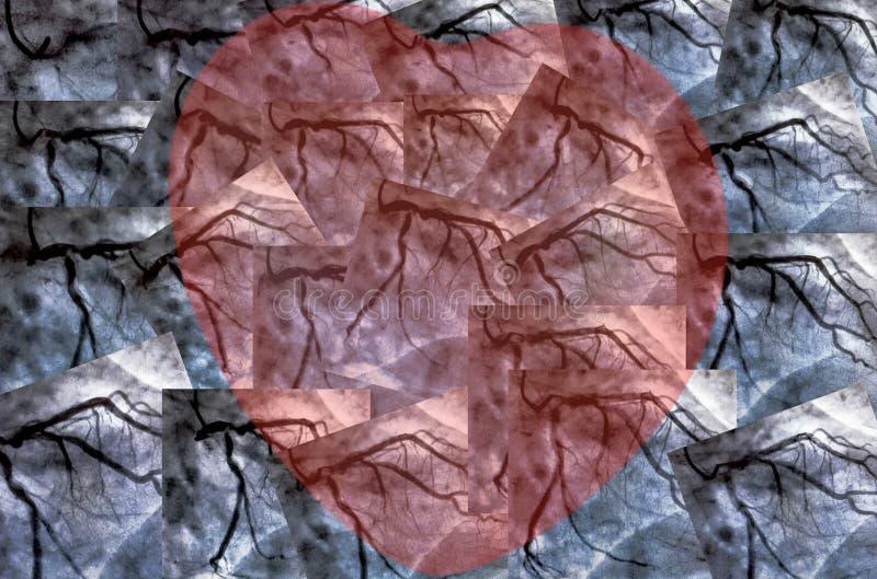 Cathéterisation Ventriculographie cardiaque et petit coeur rouge illustration libre de droits