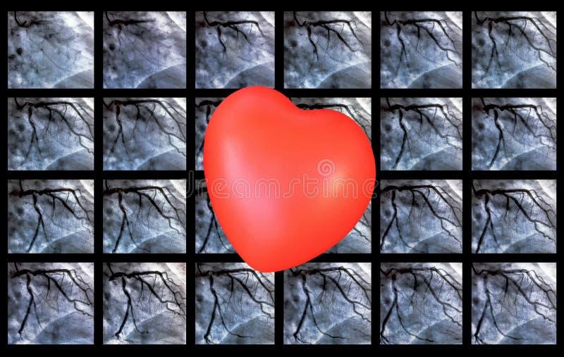 Catheterization Hjärt- ventriculography och liten röd hjärta fotografering för bildbyråer