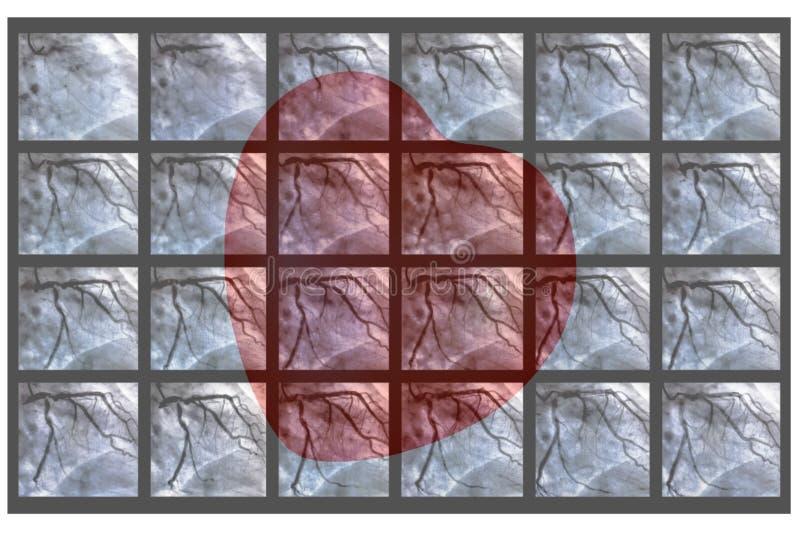 Catheterization Hjärt- ventriculography och liten röd hjärta arkivbild