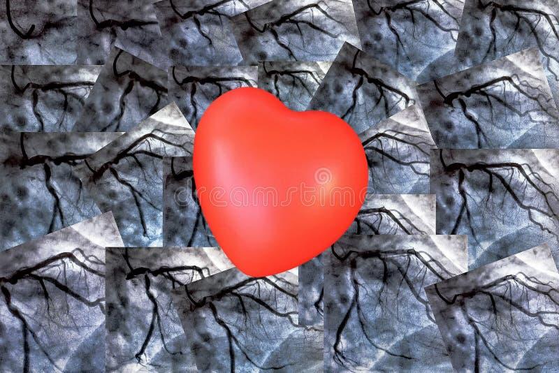 Catheterization Hjärt- ventriculography och liten röd hjärta royaltyfria bilder