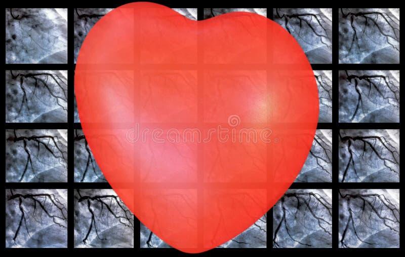 Catheterization Hjärt- ventriculography och liten röd hjärta arkivfoto